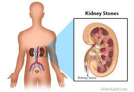 Investigating the Factors Relevant to Kidney Stone in Patients at Amir al-Muminin Hospital in Zabol City in 2017-2018