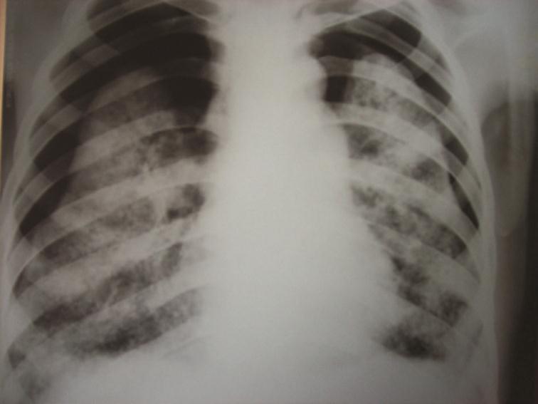 Sporadic Lymphangioleiomyomatosis Presented with Bilateral Pneumothorax