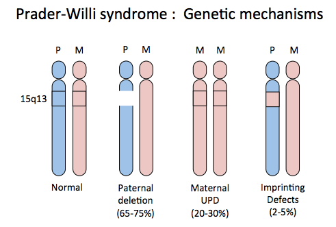Sleep Disordered Breathing in Prader-Willi Syndrome: A Review