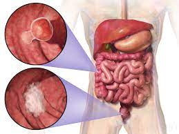 Rectal and colon cancer: Not just a different anatomic site