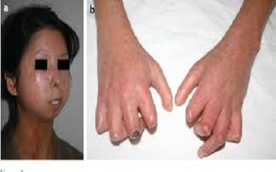 BK Polyomavirus in Patient with Systemic Sclerosis